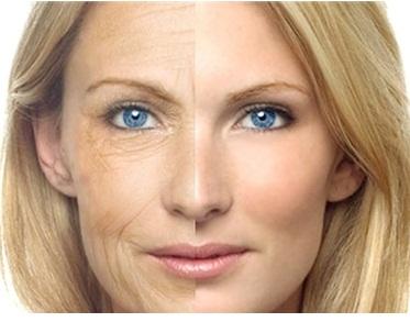 Tác dụng phụ của collagen