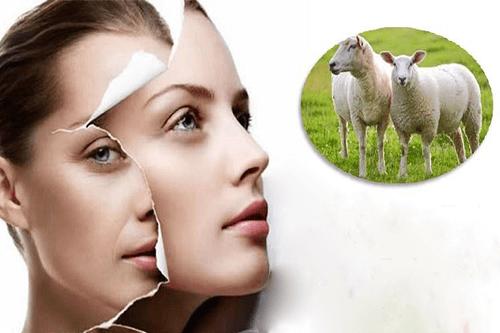 nhau thai cừu sữa ong chúa