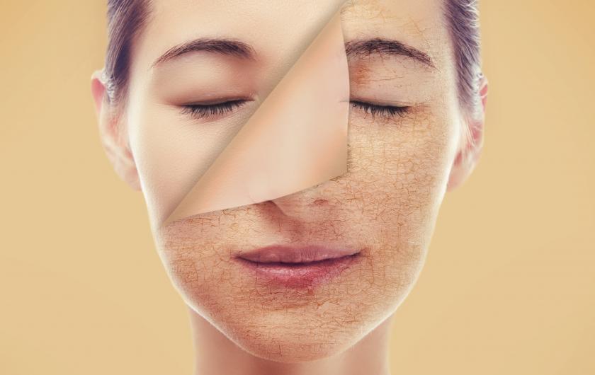collagen nào tốt cho phụ nữ 30 tuổi